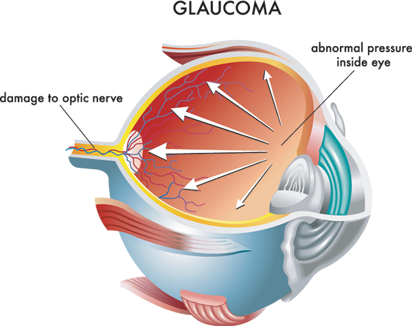 glaucoma treatment in valley stream